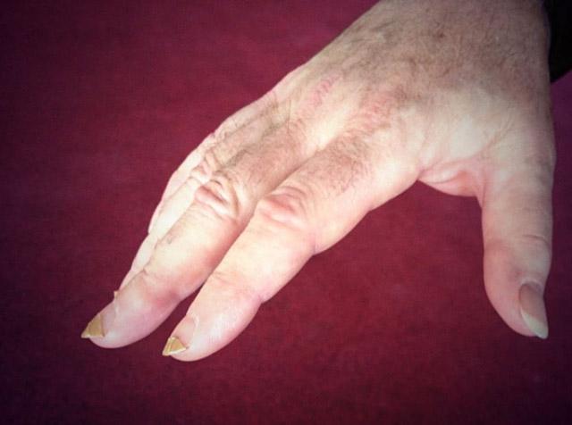 la-cura-delle-unghie2